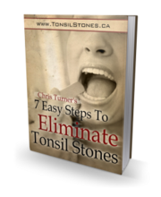 Cure tonsil stones effectively