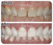 Professional Teeth Whitening Training in Toronto