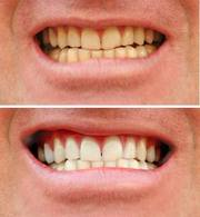 GTA Toronto Teeth Whitening Course