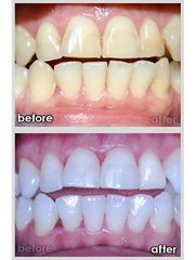 Toronto GTA Inexpensive Teeth Whitening Training