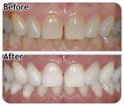 Toronto GTA Teeth Whitening Training
