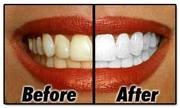Limited Time Offer One Hour Teeth Whitening Service