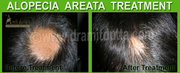 Ayurvedic Hair Treatments :Hair Specialist Ayurvedic  - Dr. Amit Dutta