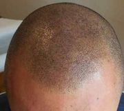 Baldness and Thin Hair Treatment SMP - Scalp Micro-Pigmentation Watch|