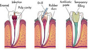 Root Canal Treatment Procedure Cost in Mississauga Ontario