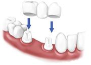 Teeth Whitening Porcelain Veneers of Lakeshore in  Mississauga
