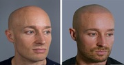 Learn about Scalp Micropigmentation from the Best Hair Tattoo Clinic i
