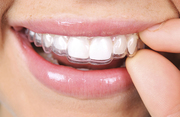 Buy Clear Aligners Online at Home With Pure Smiles Online