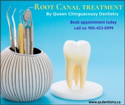 Root Canal Treatment | Best Dentist on Chinguacousy RD