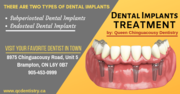 Dental Implant Treatment in Brampton