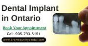 Dental Implants Treatment in Brampton,  Ontario